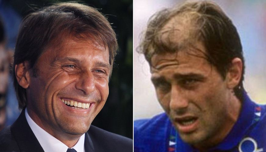 conte's-hairline
